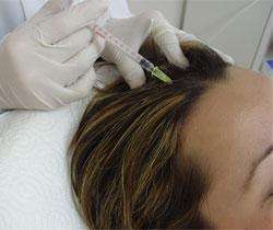 Saç Dökülmesinde Mezoterapi