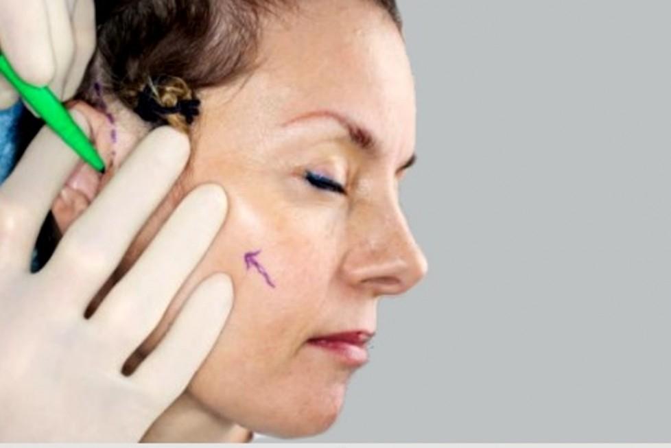 Kepçe Kulak Ameliyatlarıyla İlgili Merak Edilenler