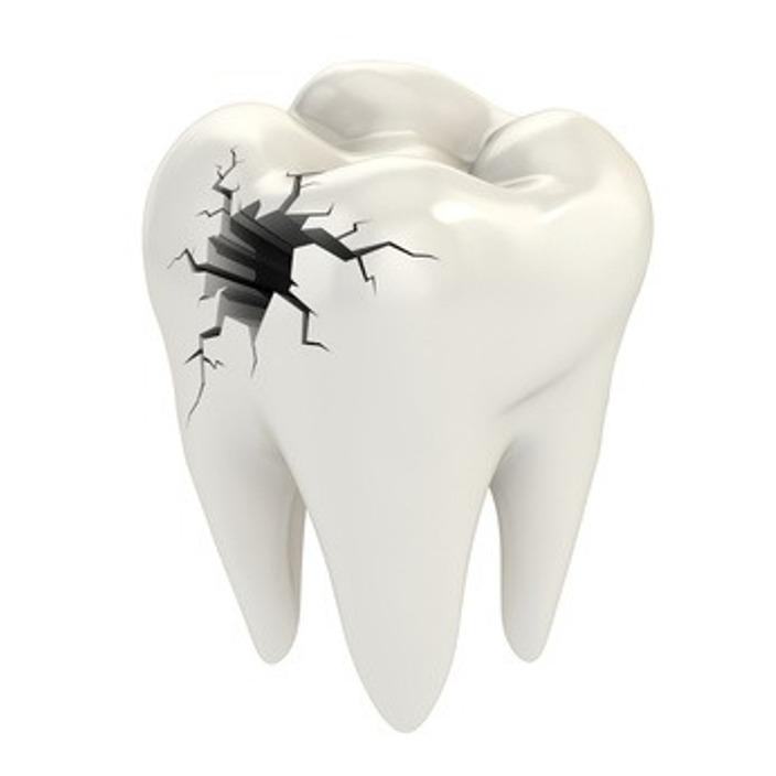 Karbonhidratlı Gıdalar Diş Çürüğüne Neden Oluyor